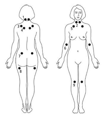Fibromialgia. Punkty uciskowe wfibromialgii