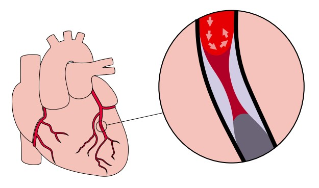 Zawał. Zwężenie tętnicy doprowadzającej krew do mięśnia sercowego
