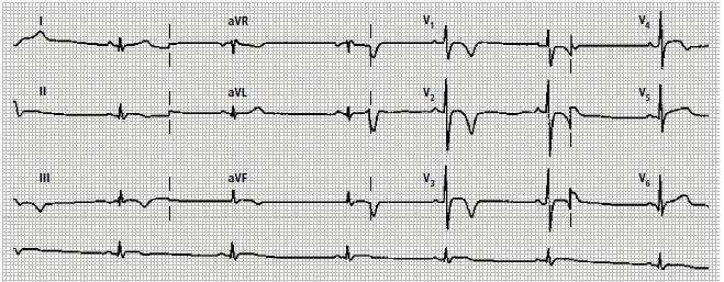 Zapis EKG
