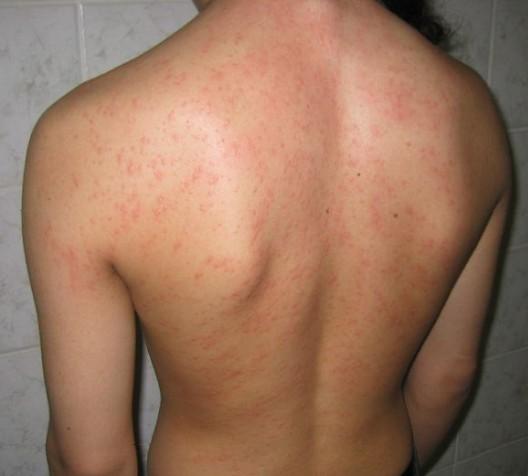 аллергия после химиотерапии