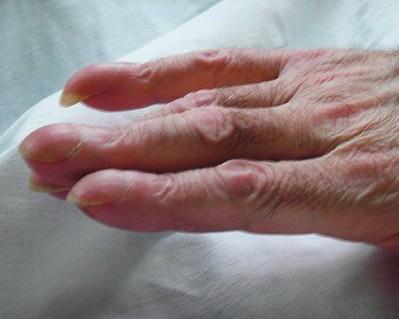 Palce pałeczkowate