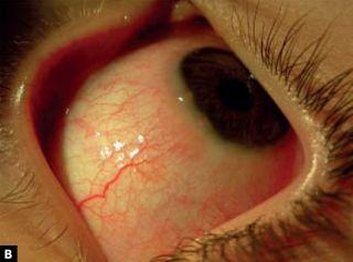 pronasal a testy alergiczne